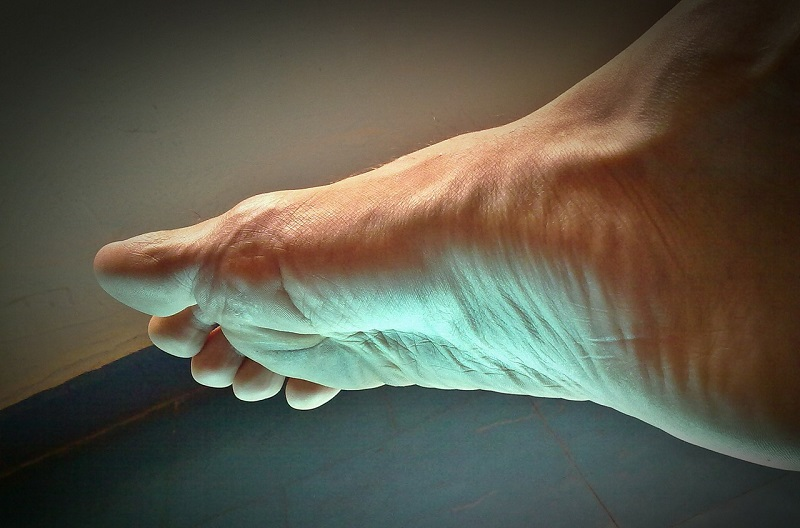 Common Types of Foot Pain and How To Deal With Them